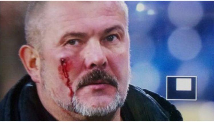 Ультрас избили нардепа Юрия Березу