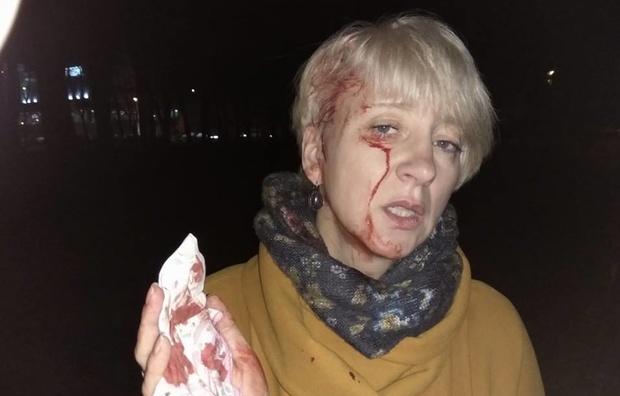 Избитая вПолтаве судья поведала опредполагаемом организаторе нападения